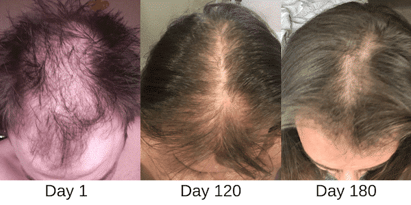 Kiierr Laser Cap Reviews- before and after hair growth image (1)
