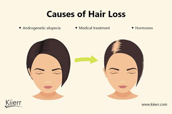 ¿Cómo funciona un gorro láser para el crecimiento del cabello? Tu guía práctica. El mejor tratamiento anticaída, cápsulas láser Kiierr.